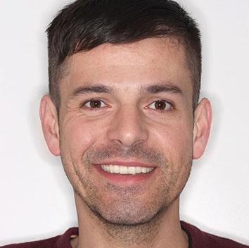 Tomás pudo corregir los problemas funcionales y estéticos de su mandíbula con una reconstrucción estética protésica mediante carillas