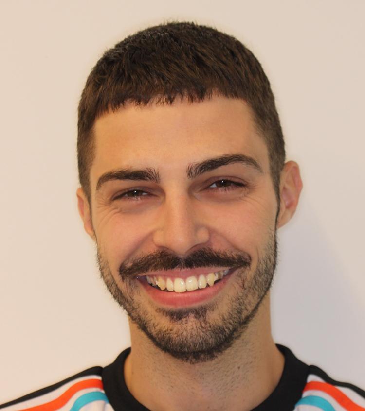 Sergio pudo corregir su maloclusión de Clase II gracias a la ortodoncia invisible lingual