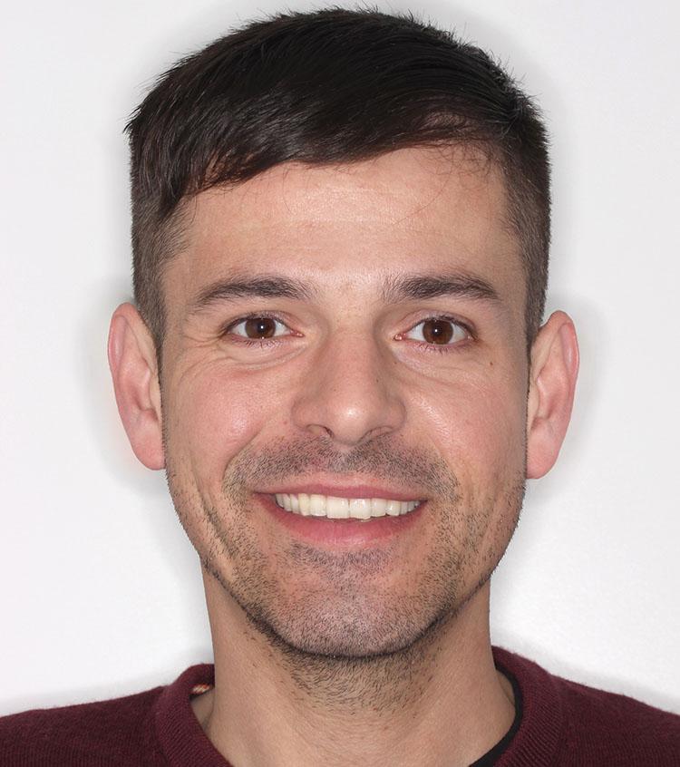 Tomas pudo corregir los problemas funcionales y estéticos de su mandíbula con una reconstrucción estética protésica mediante carillas