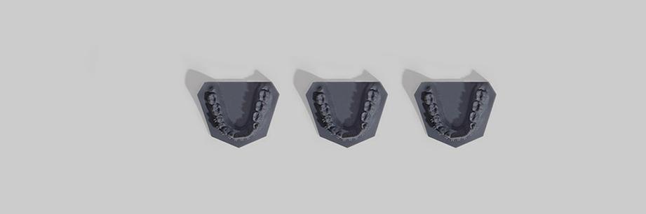 Ortodoncia Tres Torres incorpora la impresión 3d para moldes invisalign