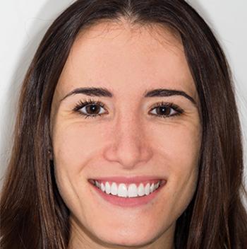 Miriam pudo corregir los espacios entre sus dientes mediante una combinación de ortodoncia con brackets de cerámica y ortodoncia Invisalign