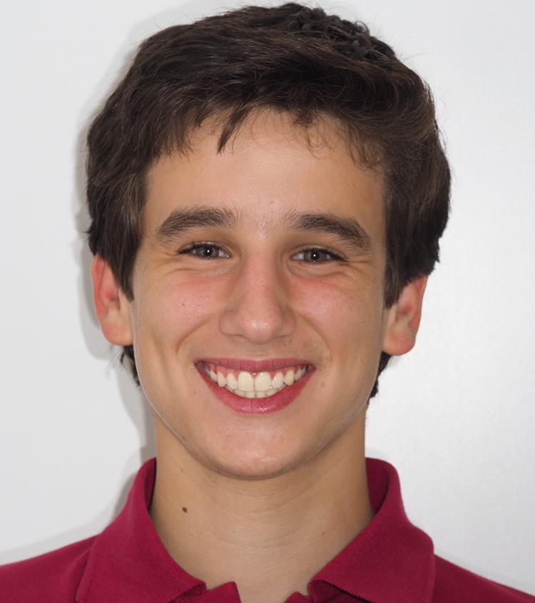 Carlitos pudo ensanchar el paladar con un tratamiento de ortodoncia con expansor de paladar y alinear los dientes con ortodoncia con brackets