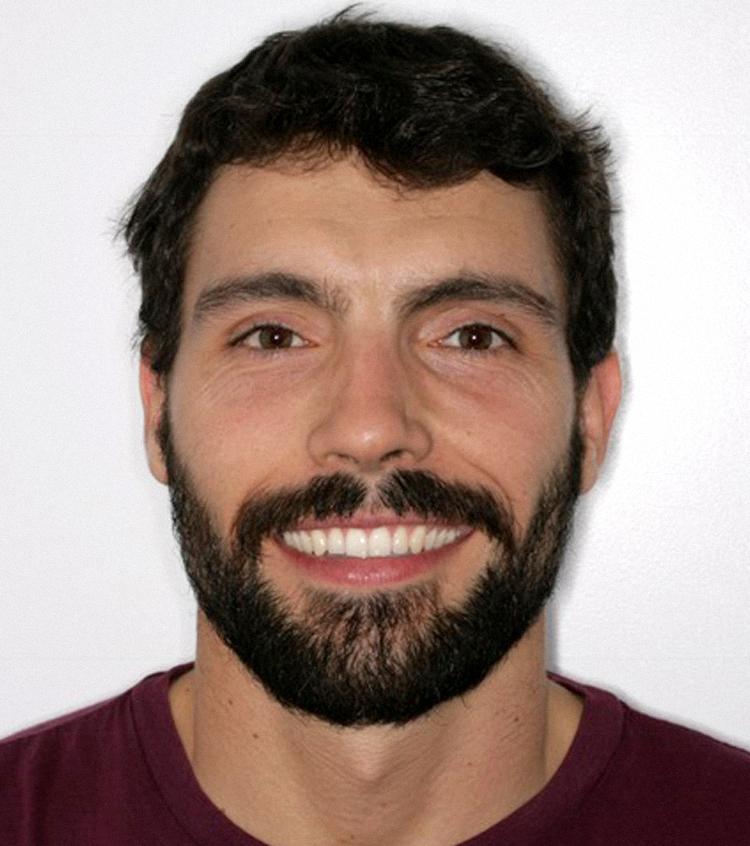 Francisco solucionó su problema de encías inflamadas por apiñamiento dentario con un tratamiento de ortodoncia invisible Invisalign