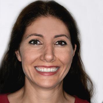 Lina solucionó su problema de microdoncia con un tratamiento de ortodoncia para agrandar dientes pequeños